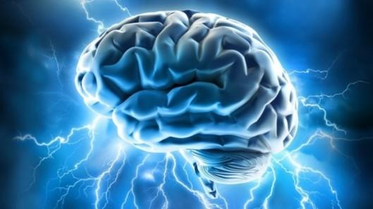 cervello27